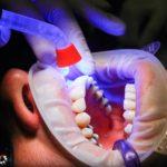 Zła metoda odżywiania się to większe braki w jamie ustnej oraz dodatkowo ich utratę